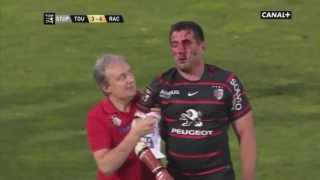 VIDEO. Top 14 - Barrage. L'impressionnante blessure de Florian Fritz du Stade Toulousain face au Racing-Métro