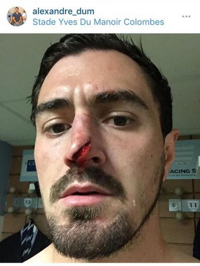VIDEO. Champions Cup - Racing 92 : la très vilaine blessure au nez d'Alexandre Dumoulin