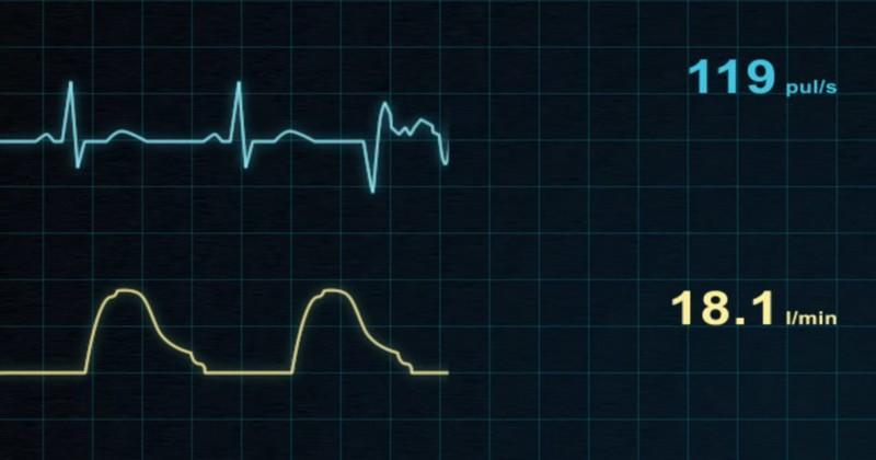 RUGBY - L'électrocardiogramme n'est plus obligatoire pour obtenir sa licence