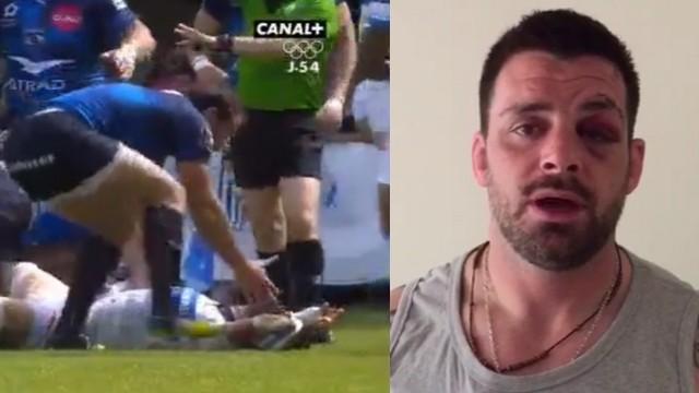 VIDEO. Top 14 - Castres. Rodrigo Capo-Ortega rassure les supporters après un KO spectaculaire