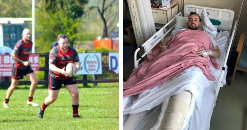 Victime d'un stamping, un rugbyman gallois évite l'amputation, et appelle à une prise de conscience