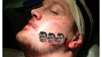 PHOTOS. PREMIERSHIP. Le pilier Nicholas Schonert défiguré après avoir reçu un coup de crampon
