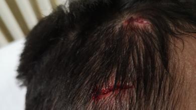 Amateur : le joueur qui s'est fait marcher sur la tête veut faire passer un message !
