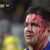 VIDEO. Top 14 - Stade Toulousain. Accident ou geste volontaire, Yoann Huget échappe de peu à une citation face à l'UBB